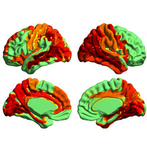 Psychedelics and Heightened Consciousness Study